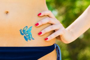 Tattoo-Removal-Body