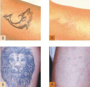 ba-tattoo