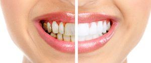 december-teeth-whitening1