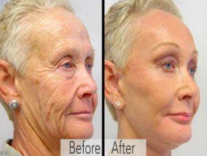 skin-transformation